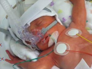 CPAP_baba_kicsi